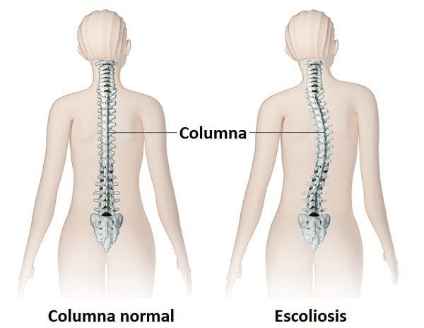 Escoliosis: causas. síntomas y tratamiento. - UrbanFisio ...