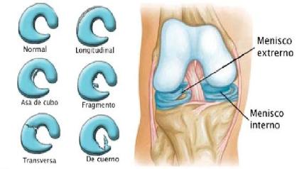 dolor rodilla menisco roto