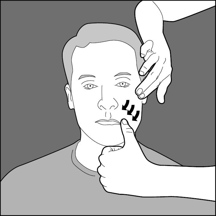 Fisioterapia parálisis facial