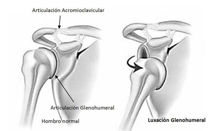 ¿Sabes lo que es la inestabilidad de hombro?